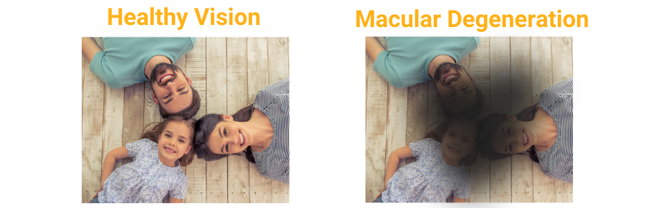 A comparison showing how macular degeneration caused by blue lights can impair your vision